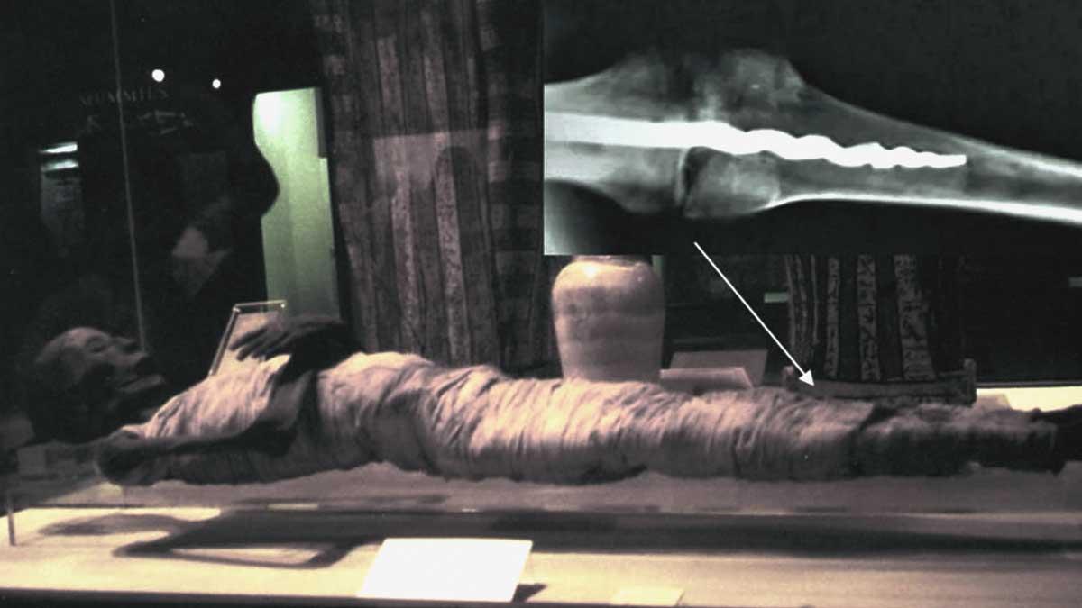 Un antiguo tornillo en la rodilla de una momia de más de 2000 años, ¿cómo puede ser?